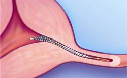 Essure-sterilization-can-be-reversed