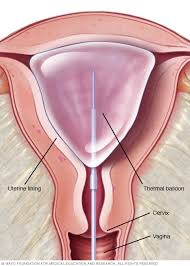 pregnancy-is-possible-after-endometrial-thermachoice-balloon-ablation